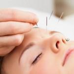 不眠症に鍼治療・針治療は効果ある?⇒Xか月続ければ治るかも